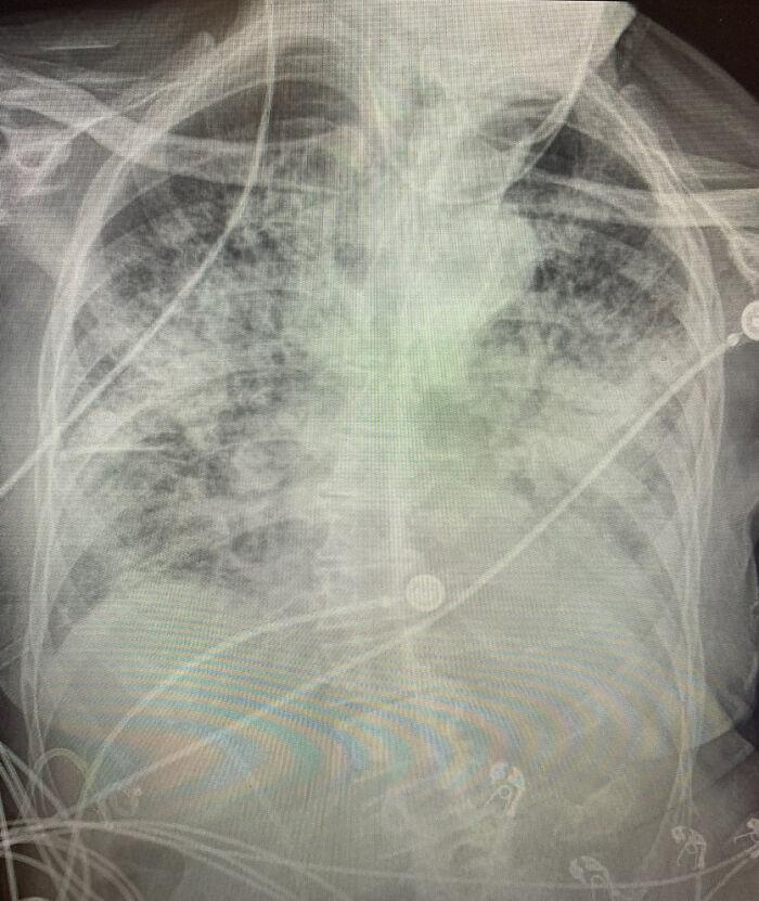 Легені вражені коронавірусом COVID-19
