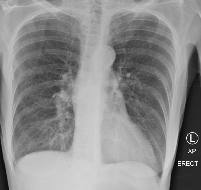 Легені курця (рентген)
